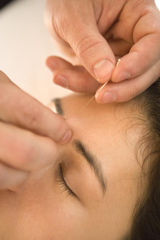 Akupunktur mod øjensygdomme